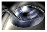 Conductive Keratoplasty steps