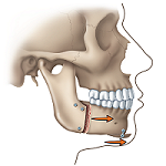 "Correcting a Receding Lower Jaw or ""Weak Chin"": 2"