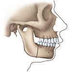 "Correcting a Receding Lower Jaw or ""Weak Chin"": 1"