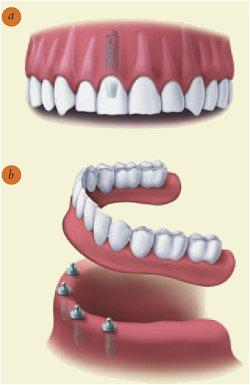 Dental Implants vs. Conventional Dentures